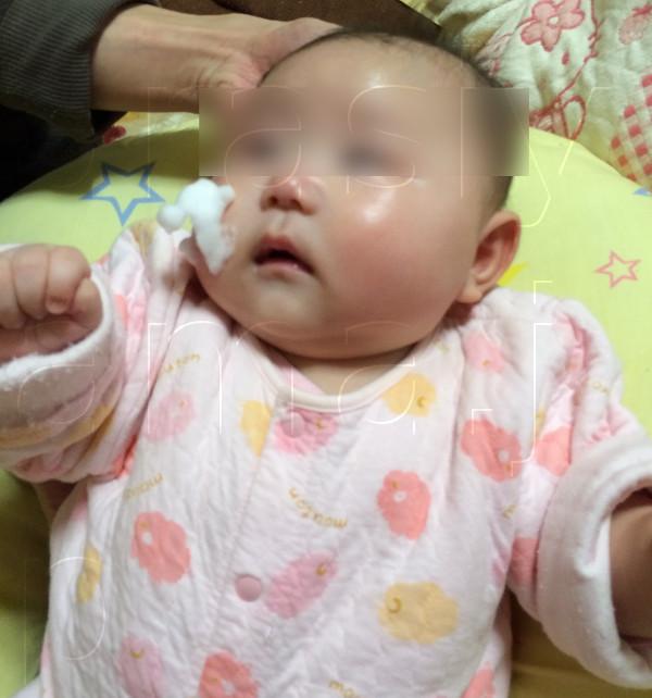 赤ちゃん アトピー 治る 小さな子供(赤ちゃん)のアトピーはすぐに治るはず